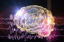 Alguns medicamentos para epilepsia foram associados a doenças cardiovasculares