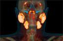 As glândulas salivares tubárias: um novo órgão potencial em risco para radioterapia