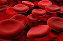 Crianças com anemia falciforme têm 200 vezes mais chances de sofrer um derrame, segundo dados da American Heart Association