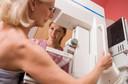 Efeito do rastreamento mamográfico a partir dos 40 anos de idade na mortalidade por câncer de mama (UK Age trial)