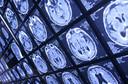 Esclerose múltipla: resultados do transplante autólogo de células-tronco hematopoiéticas publicado pelo JAMA Neurology
