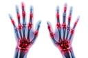 Estudo demonstra altas taxas de remissão na artrite reumatoide inicial tanto com tratamento convencional ativo quanto com três tratamentos biológicos diferentes