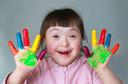 Exame para detecção da síndrome de Down (trissomia do 21) mostra resultados promissores em estudo publicado pelo NEJM