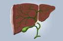 Incidência de carcinoma hepatocelular em pacientes com cirrose associada ao vírus da hepatite C tratada com agentes antivirais de ação direta