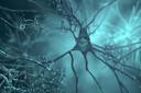 Medicamento para diabetes foi associado a menos amiloide cerebral e declínio cognitivo mais lento na doença de Alzheimer