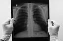 Meta da OMS é acabar com a epidemia global de tuberculose até 2035