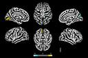 O SARS-CoV-2 infecta astrócitos cerebrais de pacientes com COVID-19 e prejudica a viabilidade neuronal