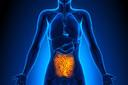 Transplante de microbiota fecal promove resposta em pacientes com melanoma refratário à imunoterapia