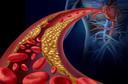 Prevalência de placas de alto risco e risco de acidente vascular cerebral em pacientes com estenose carotídea assintomática