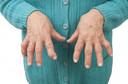 Resultados de um tratamento de 6 semanas com 10 mg de prednisolona em pacientes com osteoartrite da mão