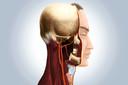 Stent ou endarterectomia para estenose carotídea sintomática? Quais são os resultados a longo prazo? Publicação do The Lancet Neurology