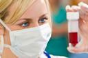 Testes sangüíneos podem predizer a recorrência de câncer gástrico